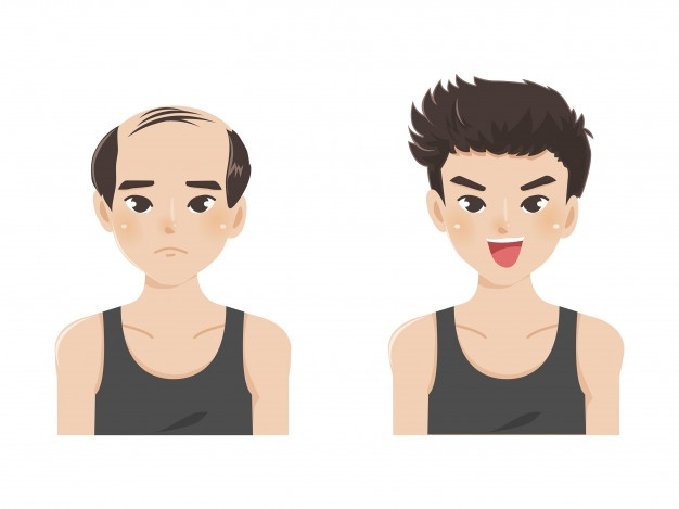Male Bald
